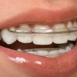 teeth, health, smile,dentist, dentalhealth, oralhealth